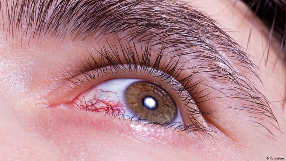 علاج المشاكل الشائعة للعين